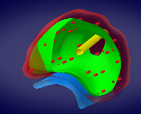Verteilung der Seeds in der Prostata. Planung vor der Implantation Zentrum für Brachytherapie Südwest