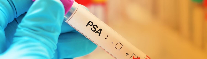 PSA-test-diagnosemöglichkeiten und vorsorgeuntersuchungen bei prostatakrebs