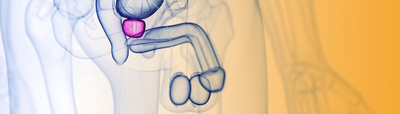 was ist prostatakrebs-zentrum fuer brachytherapie am kreiskrankenhaus emmendingen